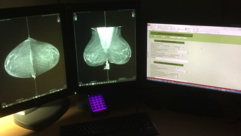 Improving radiologic technologist performance in breast cancer screening: impact of a training course