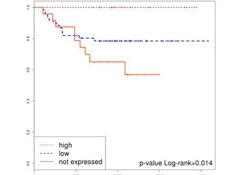 Mutanome and expression of immune response genes in microsatelite stable colon cancer